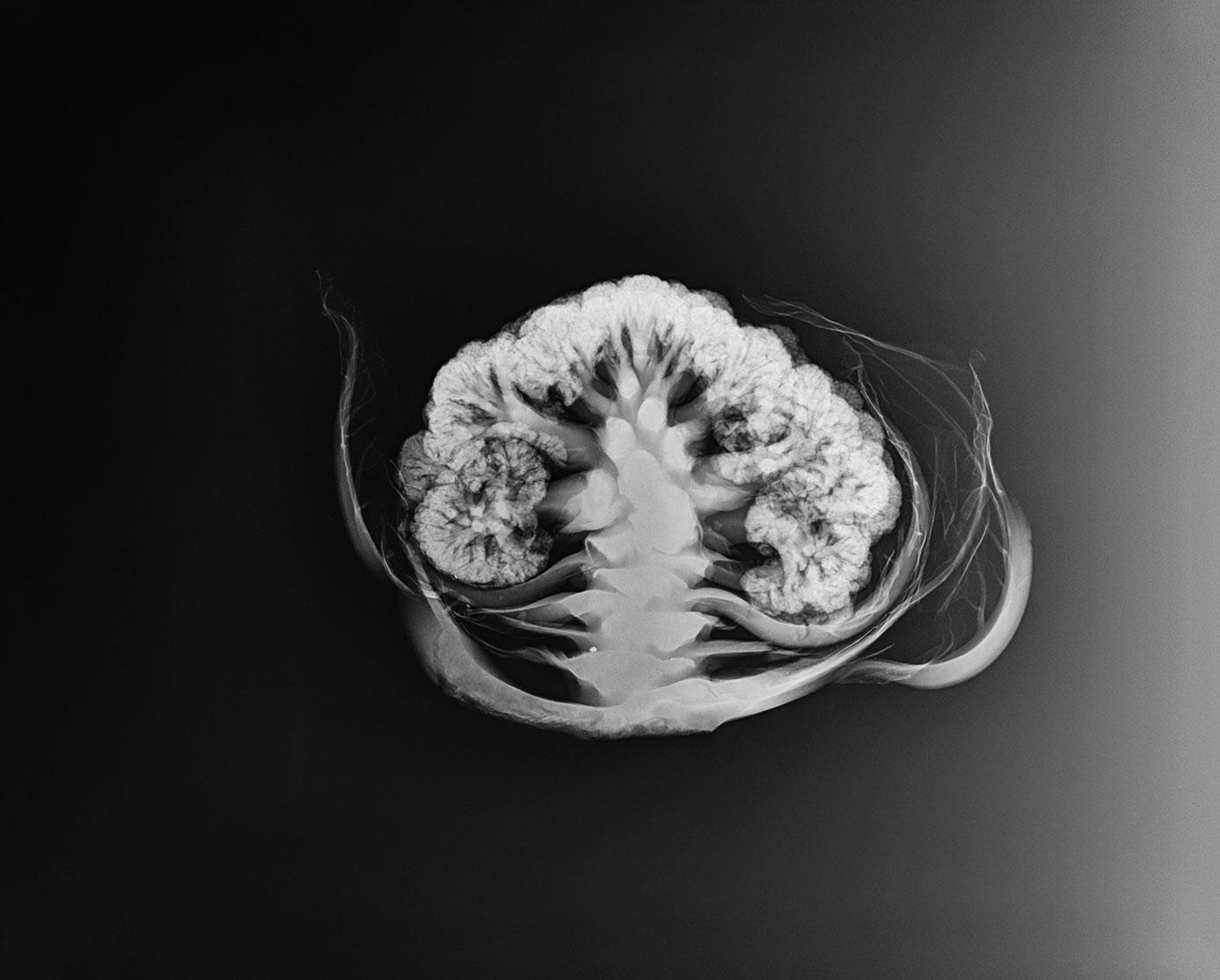 Cauliflower_xray